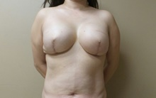 Breast Reconstruction After Photo by C. Andrew Salzberg, MD; New York, NY - Case 39381