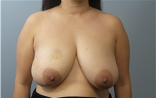Breast Reconstruction Before Photo by C. Andrew Salzberg, MD; New York, NY - Case 39381