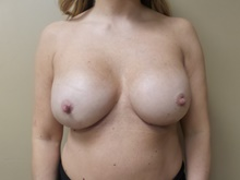 Breast Reconstruction After Photo by C. Andrew Salzberg, MD; New York, NY - Case 39562