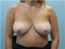 Breast Reconstruction Before Photo by C. Andrew Salzberg, MD; New York, NY - Case 39562