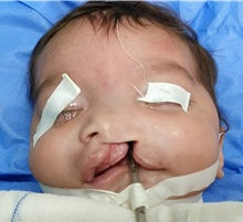 Cleft Lip and Palate Repair Before Photo by Tarek Elbanoby, MD; Cairo,  - Case 33580