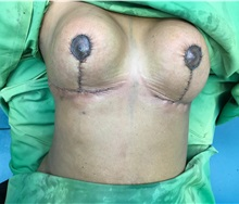 Breast Reduction After Photo by Tania Medina, MD; Arroyo Hondo, Santo Domingo, BR - Case 35788