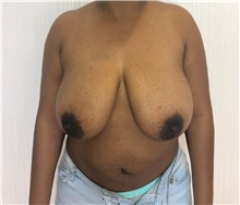 Breast Reduction Before Photo by Tania Medina, MD; Arroyo Hondo, Santo Domingo, BR - Case 35788