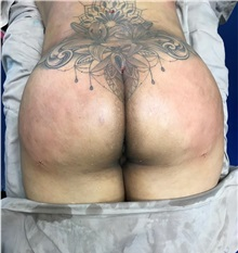 Buttock Lift with Augmentation After Photo by Tania Medina, MD; Arroyo Hondo, Santo Domingo, BR - Case 35919