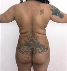 Buttock Lift with Augmentation Before Photo by Tania Medina, MD; Arroyo Hondo, Santo Domingo, BR - Case 35919