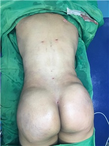 Buttock Lift with Augmentation After Photo by Tania Medina, MD; Arroyo Hondo, Santo Domingo, BR - Case 35974