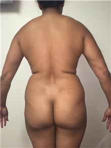 Buttock Lift with Augmentation Before Photo by Tania Medina, MD; Arroyo Hondo, Santo Domingo, BR - Case 35974
