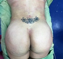 Buttock Lift with Augmentation After Photo by Tania Medina, MD; Arroyo Hondo, Santo Domingo, BR - Case 36205
