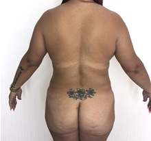 Buttock Lift with Augmentation Before Photo by Tania Medina, MD; Arroyo Hondo, Santo Domingo, BR - Case 36205