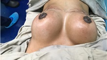 Breast Implant Revision After Photo by Tania Medina, MD; Arroyo Hondo, Santo Domingo, BR - Case 36601