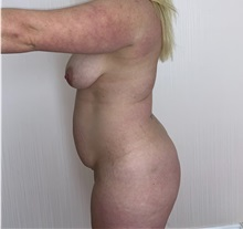 Liposuction Before Photo by Tania Medina, MD; Arroyo Hondo, Santo Domingo, BR - Case 37751