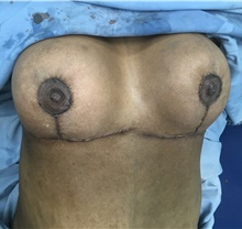 Breast Reduction After Photo by Tania Medina, MD; Arroyo Hondo, Santo Domingo, BR - Case 38697