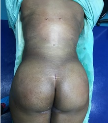 Buttock Lift with Augmentation After Photo by Tania Medina, MD; Arroyo Hondo, Santo Domingo, BR - Case 39710