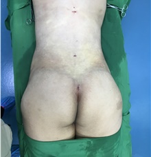 Buttock Lift with Augmentation After Photo by Tania Medina, MD; Arroyo Hondo, Santo Domingo, BR - Case 42545