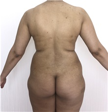 Buttock Lift with Augmentation Before Photo by Tania Medina, MD; Arroyo Hondo, Santo Domingo, BR - Case 42545