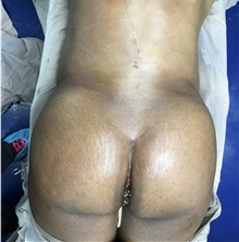 Buttock Lift with Augmentation After Photo by Tania Medina, MD; Arroyo Hondo, Santo Domingo, BR - Case 42565