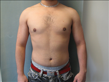 Male Breast Reduction After Photo by Mordcai Blau, MD; White Plains, NY - Case 24805