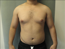 Male Breast Reduction Before Photo by Mordcai Blau, MD; White Plains, NY - Case 24805