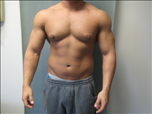 Male Breast Reduction After Photo by Mordcai Blau, MD; White Plains, NY - Case 24806