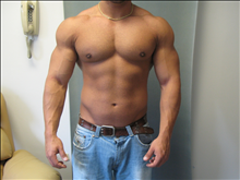 Male Breast Reduction Before Photo by Mordcai Blau, MD; White Plains, NY - Case 24806