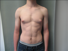 Male Breast Reduction Before Photo by Mordcai Blau, MD; White Plains, NY - Case 24807