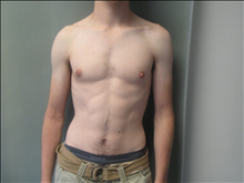 Male Breast Reduction After Photo by Mordcai Blau, MD; White Plains, NY - Case 24807