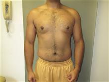 Male Breast Reduction After Photo by Mordcai Blau, MD; White Plains, NY - Case 29310