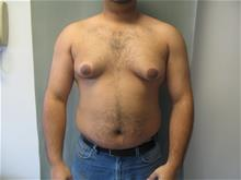 Male Breast Reduction Before Photo by Mordcai Blau, MD; White Plains, NY - Case 29310