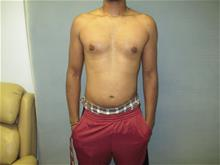 Male Breast Reduction After Photo by Mordcai Blau, MD; White Plains, NY - Case 29316