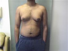 Male Breast Reduction Before Photo by Mordcai Blau, MD; White Plains, NY - Case 29316