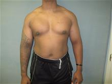 Male Breast Reduction After Photo by Mordcai Blau, MD; White Plains, NY - Case 29318