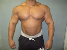 Male Breast Reduction After Photo by Mordcai Blau, MD; White Plains, NY - Case 29319