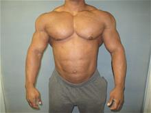 Male Breast Reduction Before Photo by Mordcai Blau, MD; White Plains, NY - Case 29319