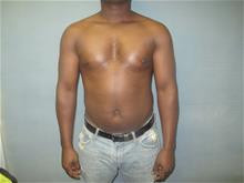 Male Breast Reduction After Photo by Mordcai Blau, MD; White Plains, NY - Case 29321