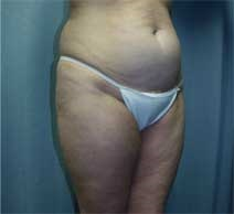 Liposuction Before Photo by Paul Zwiebel, MD; Highlands Ranch, CO - Case 3002
