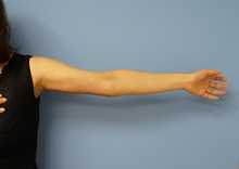 Arm Lift After Photo by William Lao, MD; New York, NY - Case 33754