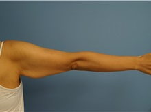 Arm Lift Before Photo by William Lao, MD; New York, NY - Case 33754