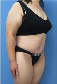 Body Contouring After Photo by William Lao, MD; New York, NY - Case 33756