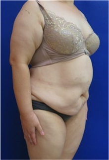 Body Contouring Before Photo by William Lao, MD; New York, NY - Case 33756