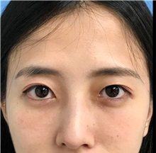 Eyelid Surgery After Photo by William Lao, MD; New York, NY - Case 33762