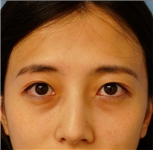Eyelid Surgery Before Photo by William Lao, MD; New York, NY - Case 33762