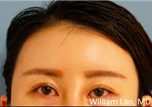 Facial Implants After Photo by William Lao, MD; New York, NY - Case 33794