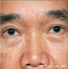Eyelid Ptosis Repair After Photo by William Lao, MD; New York, NY - Case 33796