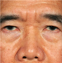 Eyelid Ptosis Repair Before Photo by William Lao, MD; New York, NY - Case 33796