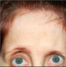 Brow Lift Before Photo by William Lao, MD; New York, NY - Case 33797
