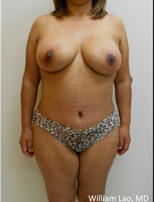 Tummy Tuck After Photo by William Lao, MD; New York, NY - Case 33801