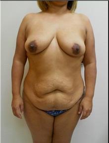 Tummy Tuck Before Photo by William Lao, MD; New York, NY - Case 33801