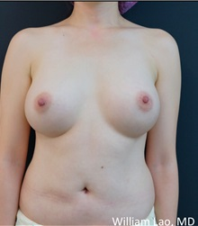 Breast Augmentation After Photo by William Lao, MD; New York, NY - Case 33803