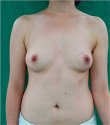 Breast Augmentation Before Photo by William Lao, MD; New York, NY - Case 33803