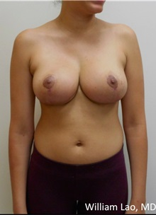 Body Lift After Photo by William Lao, MD; New York, NY - Case 33805
